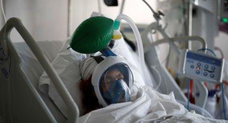 Koronavirus xəstələrində immun cavab bakteriyası az olur